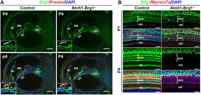 <t>Brg1</t> expression in cochlea and conditional Brg1 inactivation in cochlear HCs. ( A ) Transverse sections of P4 cochlea stained with Brg1 (green), the OHC marker Prestin (red) and DAPI (blue, nuclei). Brg1 was specifically deleted in Atoh1-Brg1 −/− HCs. Inserts represent higher magnification views of the boxed areas. Brackets indicate OHCs, and arrowheads indicate <t>IHC.</t> Abbreviations: RM, Reissner's membrane; SV, stria vascularis; OC, organ of Corti; SG, spiral ganglia. Scale bars: 100 μm. ( B ) Efficiency of Brg1 deletion shown by whole mount cochlea of P1 and P4 mice stained with Brg1 (green), the HC marker Myosin7a (red) and DAPI (blue, nuclei). Brg1 was sill detected in P1 Atoh1-Brg1 −/− HCs with a lower signal than in control HCs while in P4 Atoh1-Brg1 −/− HCs, Brg1 was absent in all HCs. Scale bars: 20 μm.