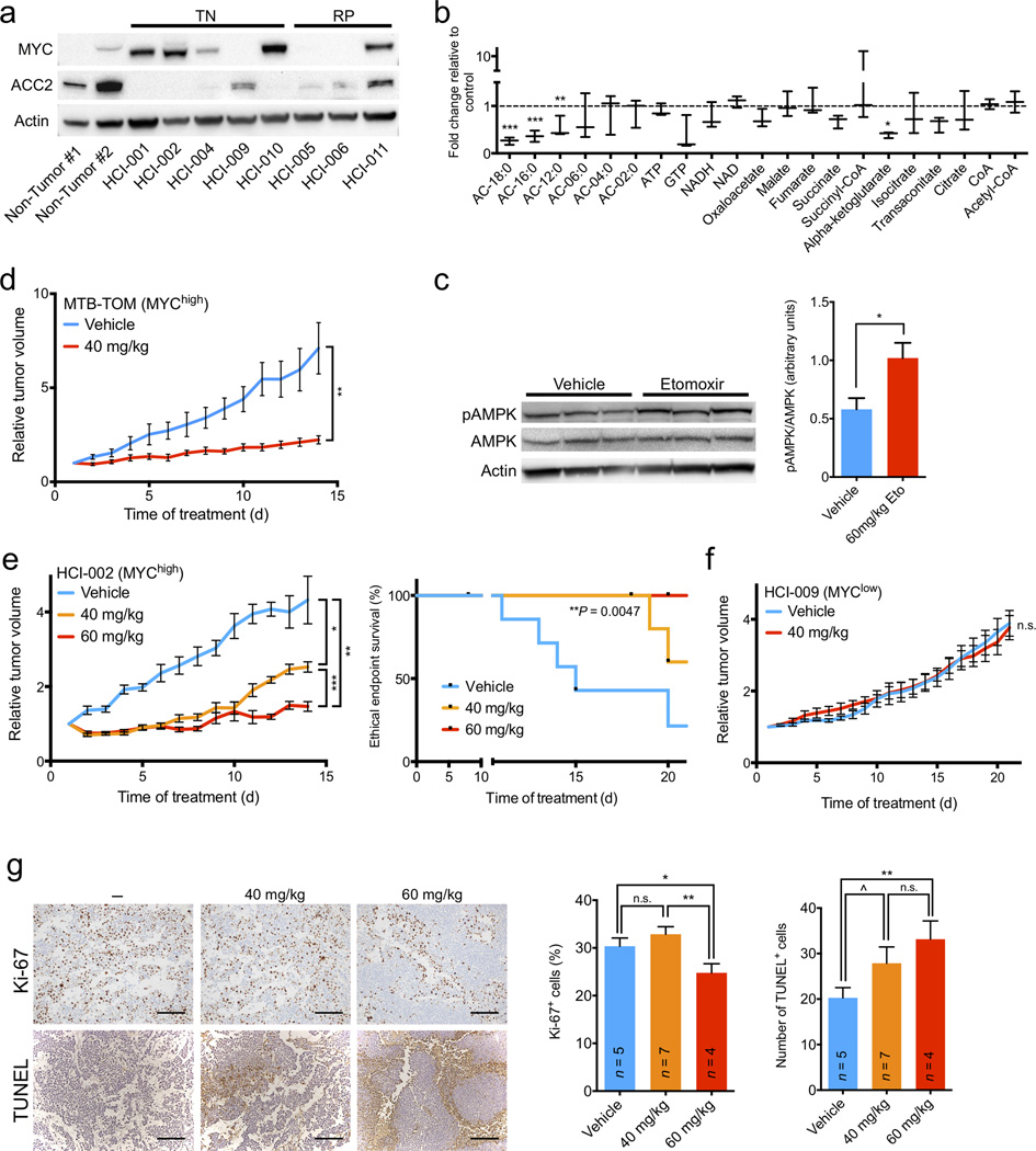 FAO inhibition shows MYC-dependent bioenergetic and growth effects in vivo . ( a ) Immunoblot analysis of indicated protein expression in TN and RP patient-derived xenografts and human non-tumor reduction mammoplasty tissues. ( b ) Fold change in metabolite levels in etomoxir-treated xenografts versus vehicle-treated tumors. Values are shown as min-to-max box plots from three mice in each group. ( c ) Etomoxir- and vehicle-treated tumors were examined by immunoblotting for indicated protein expression. pAMPK/AMPK ratio was normalized to β-actin. ( d ) FVB/N mice with orthotopic MTB-TOM tumor allografts were treated with vehicle or etomoxir (40 mg/kg) daily for 14 d. Growth plots are shown. ( e ) Left, NOD/SCID mice with orthotopic HCI-002 xenografts were treated with vehicle or etomoxir (40 or 60 mg/kg) daily for 21 d. Growth plots are shown. Statistical analysis was performed using a log-rank test. ( f ) NOD/SCID mice with orthotopic HCI-009 xenografts were treated with vehicle or etomoxir (40 mg/kg) daily for 21 d. Growth plots are shown. ( g ) Left, representative Ki-67 and TUNEL staining of untreated, 40 or 60 mg/kg etomoxir-treated HCI-002 tumors from mice euthanized at the end of the study. Right, quantification of percent Ki-67 positive cells per field and number of TUNEL positive cells per field. Number of mice analyzed in each treatment is indicated. Scale bar indicates 200 µm. All differential metabolite abundance analyses were performed using the limma R package. A two-tailed unpaired t -test was used to compare experimental groups ( c–g ). Values shown are mean ± s.e.m. from three individual mice ( c ), six mice in the control group and seven mice in the experimental group ( d ), seven mice in the control and 40 mg/kg etomoxir groups and five mice in the 60 mg/kg group ( e ), three mice in each group ( f ), or three high-powered (20×) fields from two separate areas of each tumor ( g ). ^ P ≤ 0.10, * P ≤ 0.05, ** P