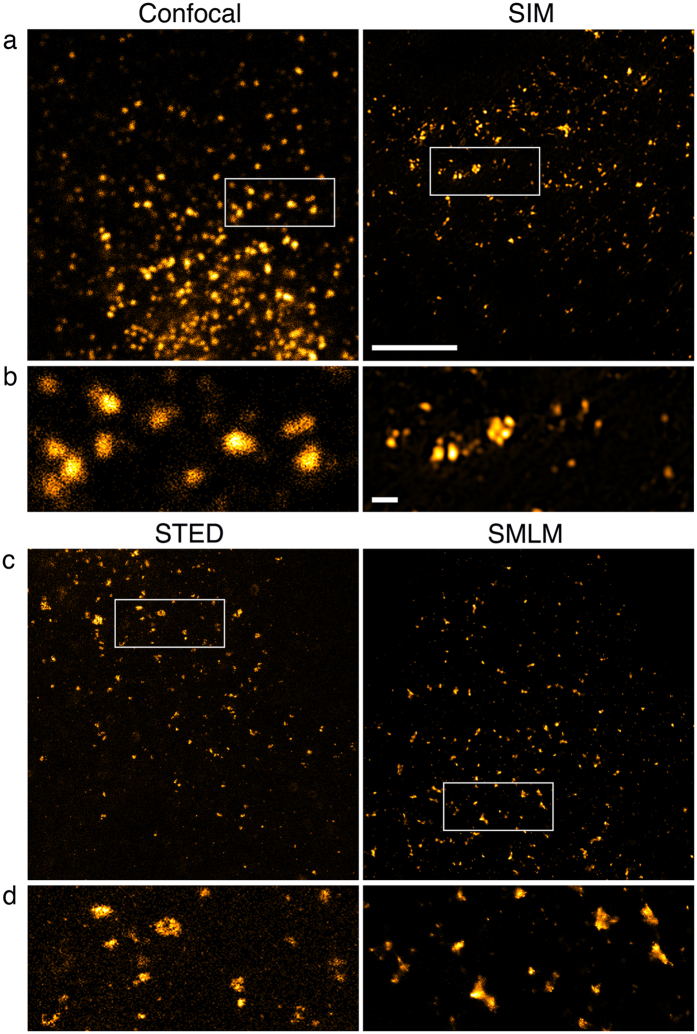 Transport vesicles in COS7 cells. Sec31A was detected with primary and secondary antibodies, the latter coupled to Alexa Fluor 488 for confocal imaging, SIM and STED and Alexa Fluor 647 for SMLM. 100% available depletion laser power was used for STED. ( a,c ) Overview of vesicles close to the nucleus in a single optical section. Boxed areas are magnified in ( b,d ). Scale bar, 5 μm. ( b,d ) Vesicles of various sizes with a little out of focus background visible as weak, small foci in STED. Scale bar, 0.5 μm.