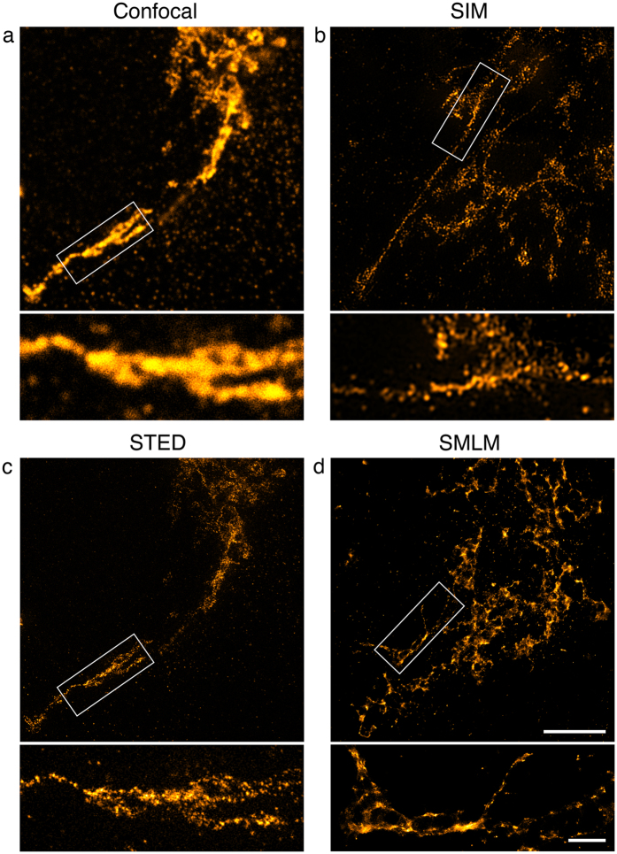 Trans-Golgi network in COS7 cells. TGN46 distribution was detected with primary and secondary antibodies, the latter coupled to Alexa Fluor 488 for confocal imaging ( a ), SIM ( b ) and STED ( c ) and Alexa Fluor 647 for SMLM ( d ). 100% available depletion laser power was used for STED. Shown are single optical sections through part of the TGN. Scale bar, 5 µm. Boxed areas are magnified underneath. Scale bar, 1 µm.