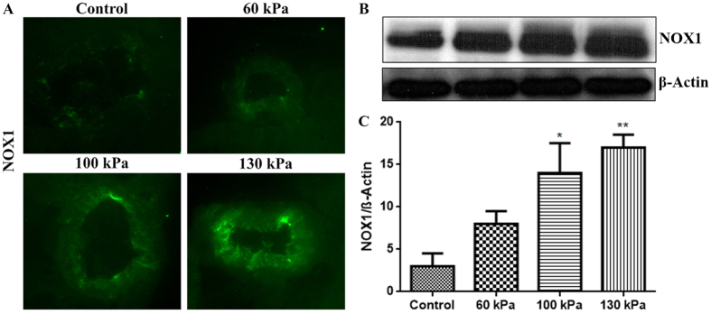 Mild TBI range of blast-wave exposure induces NADPH oxidase expression in rat brain microvessels. ( A ) A representative of immunofluorescent staining of NOX1 in intact microvessels of brain cross sections from rats subjected to a single exposure to 60, 100, or 130 kPa peak overpressure, and control. ( B ) Corresponding Western blot of NOX1 and housekeeping protein, β-actin. ( C ) Bar graphs show the quantitative results of the NOX1 immunoreactive fluorescence intensities. Values are mean ± SEM (n = 4) with p-value ≤0.01 compared with control.