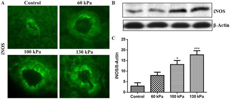 Mild TBI range of blast-wave exposure dose-dependently increased the levels of inducible nitric oxide synthase (iNOS) in rat brain microvessels. ( A ) A representative of immunofluorescent staining of iNOS in microvessel of whole brain tissue cross section in control and blast exposed animals. ( B ) Corresponding Western Blot of iNOS and housekeeping protein, β-actin. ( C ) Bar graphs show the quantitative results of the iNOS immunoreactive fluorescence intensities. Values are mean ± SEM, (n = 4), and asterisks indicate statistical significance (p-value