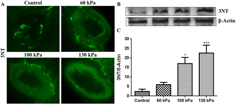 Formation of nitrosative damage maker 3-nitrotyrosine (3NT) in brain microvessels of low intensity blast range. ( A ) A representative of immunofluorescent staining of 3NT in microvessel of whole brain tissue cross section in control and blast exposed animals. ( B ) Corresponding Western Blot of 3NT and housekeeping protein, β-actin. ( C ) Bar graphs of quantification of the 3NT immunoreactive fluorescence. Values are mean ± SEM, (n = 4), and asterisk indicates statistical significant (p-value