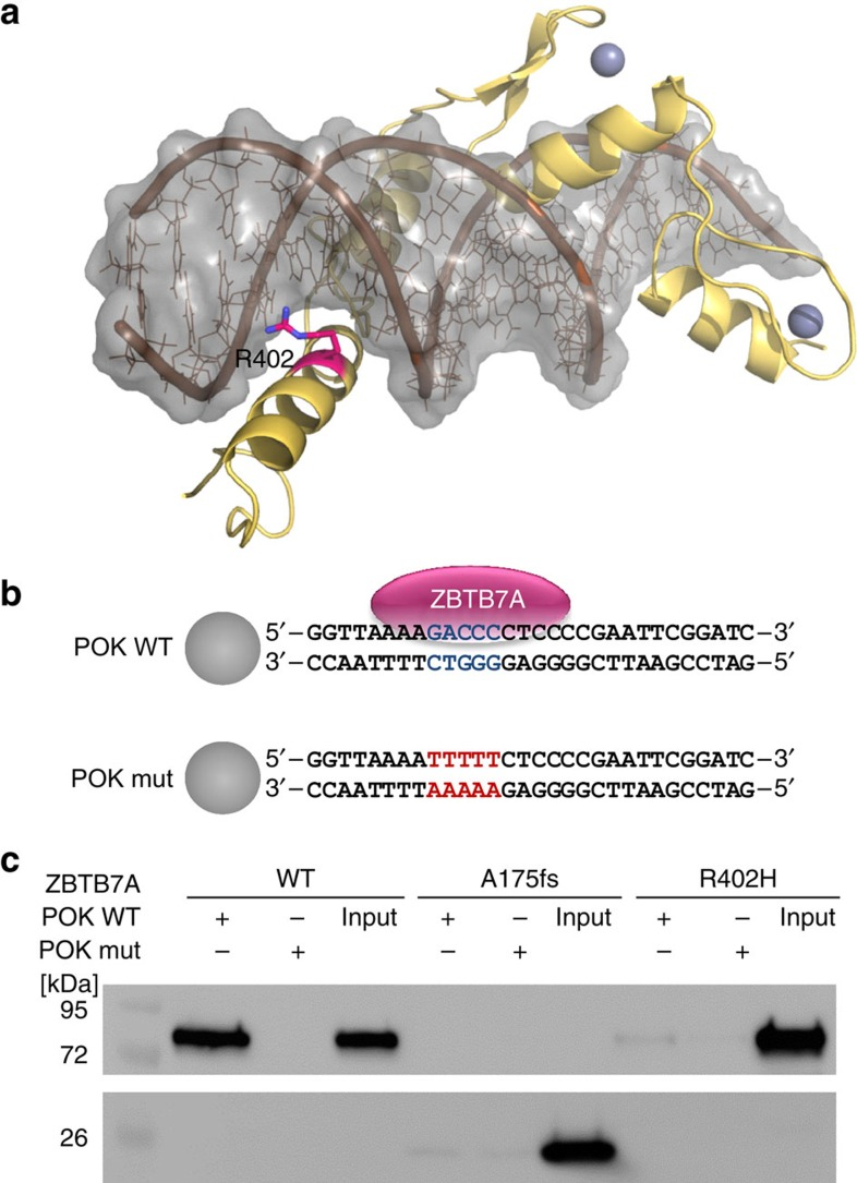 Impact of ZBTB7A mutations on DNA binding. ( a ) Model for the C-terminal zinc-finger domain of ZBTB7A comprising residues 382–488. The model is depicted as yellow ribbon with highlighted secondary structure. Zinc ions are shown as grey spheres. DNA is shown in brown with a grey molecular surface. R402 (purple) binds into the major groove and likely contributes to the affinity or sequence specificity of the DNA interaction of the zinc-finger domain. ( b ) Biotinylated oligonucleotides containing the ZBTB7A (alias: Pokemon) consensus binding motif (POK WT) or a mutant thereof (POK mut) 14 used in DNA pull-down experiments. Spheres illustrate streptavidin-coated beads. ( c ) DNA pull-down using protein lysates from HEK293T cells expressing wild-type or mutant ZBTB7A. Western blot analysis shows that A175fs and R402H fail to bind oligonutides with a ZBTB7A-binding site (POK WT). Oligonucleotides with a mutated binding site (POK mut) were used as negative control. Input lanes were loaded with 10% of the protein lysate used for each binding reaction.