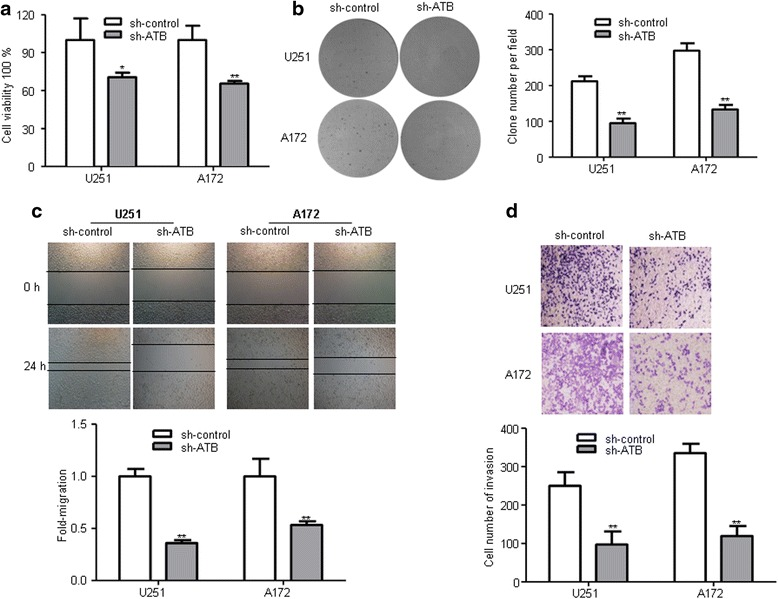 Knockdown of ATB inhibited the proliferation, migration, and invasion of glioma cells in vitro. a CCK-8 assay was performed to determine the proliferation effect of sh-ATB and sh-control transfected U251 and A172 cells. * P