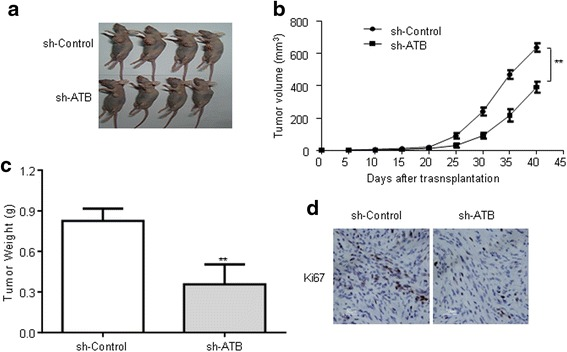 Knockdown of ATB inhibited U251 cell growth in vivo. a sh-control or sh-ATB was transfected into U251 cells, which were injected in nude mice, respectively. b Tumor volumes were calculated every 5 days after injection. Bars indicate SD. c Tumor weights are represented as means of tumor weights ± SD. d Immunohistochemical (IHC) staining expression of Ki-67 in subcutaneous tumors of mice injected with sh-control or sh-ATB cells. Data are presented as mean ± s.d. from three independent experiments. ** P