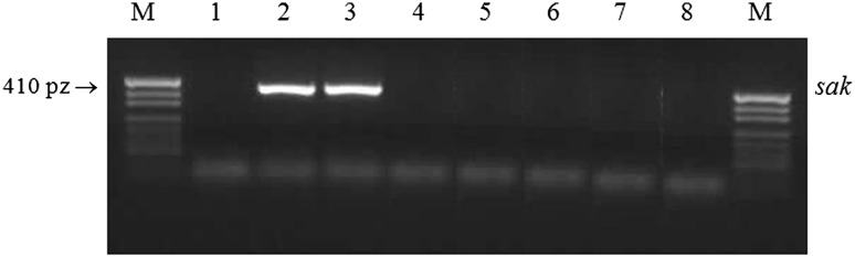 Agarose gel electrophoresis of PCR amplification of fibrinolysin gene ( sak ) product. M molecular size marker (pUC19 DNA/MspI enzyme, Fermentas, Lithuania), lane 1 negative control (PCR mixture), lanes 2 – 3 positive control ( S. aureus Wood 46 and S. aureus ATCC 25923), lanes 4 – 8 P-like pA+ S. aureus strains