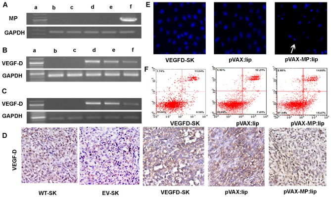 RT-PCR and apoptotic effect on VEGFD-SK cells. (A) RT-PCR analysis of expression of MP in vitro . High expression of MP in VEGFD-SK cells transfected with pVAX-MP:lip was detected (1,036 bp). GAPDH was used for the internal standard. The displaying panel of electrophoretic image presents the following: DNA ladder marker (a), WT-SK (b), EV-SK (c), VEGFD-SK (d), pVAX:lip (e), and pVAX-MP:lip (f), respectively. (B) Overexpression of VEGF-D using RT-PCR could be detected in VEGFD-SK cells, but not in WT-SK and EV-SK cells (1,077 bp). However, the VEGF-D expression was suppressed when VEGFD-SK cells suffered from pVAX-MP:lip. The overexpression of VEGF-D did not decreased obviously when VEGFD-SK cells were treated with pVA. (C) VEGF-D expression in vivo was analysis by RT-PCR. (D) The expression of VEGF-D in vivo was determined with immunohistochemistry using VEGF-D antibody: VEGFD-SK tumors were detected with much stronger staining. Whereas, the VEGFD-SK tumors in pVAX-MP:lip group present nearly negative staining. Tumors in pVAX:lip group also exhibited strong staining. Very weak VEGF-D protein was observed in WT-SK and EV-SK tumors. (E) Hoechst-33258 stained fluorescence microscopy (x200) in vitro : apoptosis cells were observed apparently when the VEGFD-SK cells were treated with pVAX-MP:lip (arrow). (F) A quantitative comparison of apoptotic cells was carried out by flow analysis stained with Annexin V-FITC and propidium iodide: pVAX-MP significantly increased VEGFD-SK cells apoptosis compared with the controls.