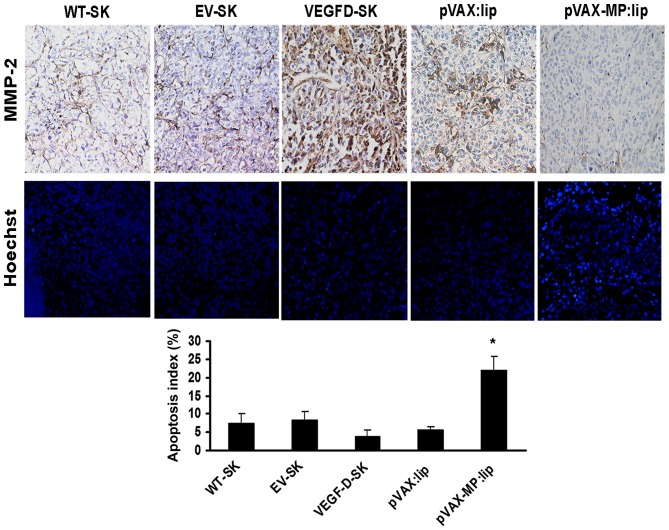 Expression of MMP-2 and comparisons of apoptotic indexes among different groups. Top panel, there was much stronger MMP-2 staining in tumor tissue of VEGFD-SK group compared with the weak staining in WT-SK group and EV-SK group. The pVAX:lip group also exhibited deep MMP-2 staining; whereas the pVAX-MP:lip group showed negative MMP-2 staining. Middle panel, microscopic fluorescence images show apoptotic cells of tumor tissues of different groups by Hoechst-33258 staining. VEGFD-SK tumor tissue manifested a few apoptosis of tumor cells; whereas pVAX-MP:lip group tumor tissue revealed a significant enhancement in apoptosis of tumor cells (arrow, apoptotic cell). However, no appreciable difference was observed between WT-SK group and EV-SK group. Bottom panel, VEGFD-SK group tumor tissue manifested a significant suppression of apoptotic tumor cells in contrast to other groups. Whereas higher apoptosis index was observed after the pVAX-MP:lip administration ( * P
