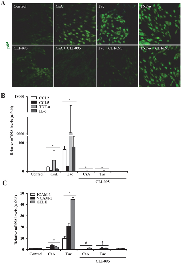 Pharmacological inhibition of TLR4 blocked proinflammatory responses induced by CsA and tacrolimus in endothelial cells. Cells were incubated with 10 μg/ml CsA or 20 μg/ml Tac alone or in the presence of the TLR4 inhibitor, CLI095 (added 6 h before the CNIs). ( A) Activation of NF-κB was assessed through the nuclear translocation of the NF-κB/p65 subunit detected by immunofluorescence confocal microscopy. Control cells show a cytoplasmic NF-κB/p65 staining (green) whereas in cells stimulated with CsA or Tac, NF-κB/p65 was mostly located inside nuclei. By contrast, the TLR4 inhibitor CLI-095 prevented nuclear translocation of NF-κB/p65. Cells were also stimulated with TNF-α (30 ng/ml) alone as a positive control of NF-κB activation or preincubated with CLI-095 to prove that TLR4 inhibition does not interfere with TNF-α-mediated NF-κB/p65 translocation. ( B,C) Transcriptional levels of proinflammatory cytokines (CCL2, CCL5, TNF-α, IL-6) ( A ) and endothelial activation markers (ICAM-1, VCAM1, SELE) ( B ) were evaluated by qRT-PCR. Data are mean ± SEM of three independent experiments. *p ≤ 0.05 vs control; # p ≤ 0.05 and † p ≤ 0.05 vs CsA or Tac, respectively.