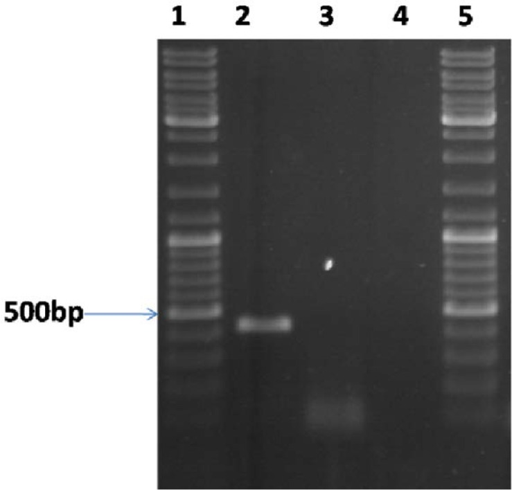 Identification of Mtb32C mRNA in transfected and non-transfected Huh-7.5 cells by RT-PCR method. A 400bp fragment was amplified by RT-PCR method in transfected cells (lane 2); no amplification was resulted by RT-PCR on extracted RNA treated with DNase I (lane 3) and on synthesized cDNA of non transfected cells (lane 4). Lanes 1 and 5: 100bp DNA size marker (Fermentas, Germany)