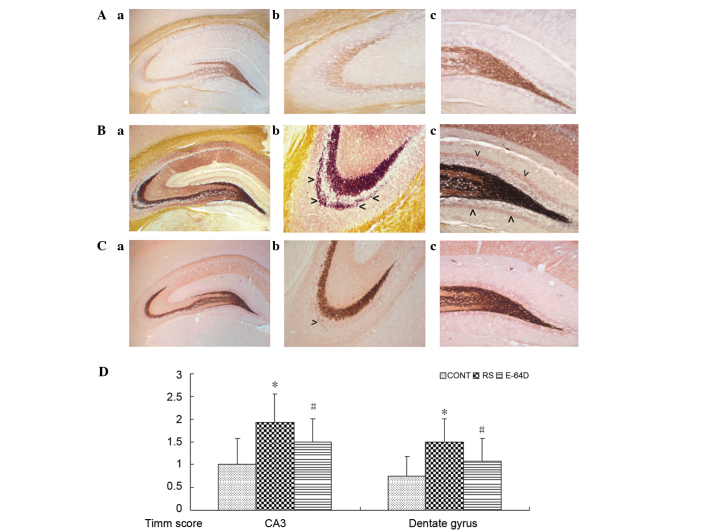 Representative images of mossy fiber sprouting by Timm staining in the (A) CONT, (B) RS and (C) E64D groups. Parts labeled as (a) represent panoramic view of hippocampus from CONT to E4D; (b) represent CA3 subfield from CONT to E64D; similarly, parts labeled as (c) represent dentate gyrus subfield. Excessive quantities of Timm staining are observed in the stratum pyramidale of CA3 subfield (as shown in B-b) and in the inner molecular layer of the granule cells (as shown in B-b) in the RS group (arrows). Mild quantities of Timm staining are observed in the stratum pyramidale of CA3 subfield (as shown in C-b) in the E64D group (arrow). Data are expressed as the mean ± standard deviation. (D) Timm staining scores compared using a non-parametric Kruskal-Wallis test. Magnification: (a) ×40; (b) and (c) ×100. *P