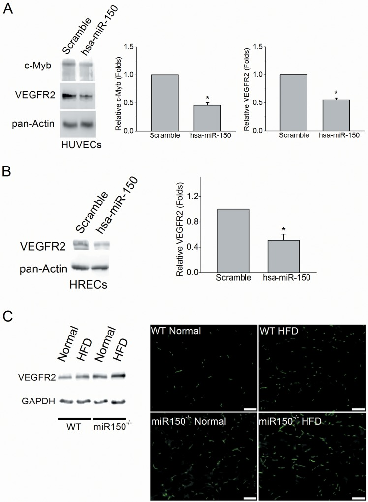 Overexpression of miR-150 decreased <t>VEGFR2</t> protein level in endothelial cells. The HUVE cells were transfected with miR-150 (has-miR-150) or a scramble microRNA (Scramble) and cultured for an additional 60 hr. The protein levels of c-Myb and VEGFR2 are significantly lower in HUVE cells with overexpression of miR-150 compared to the scramble (student's t -test; * p