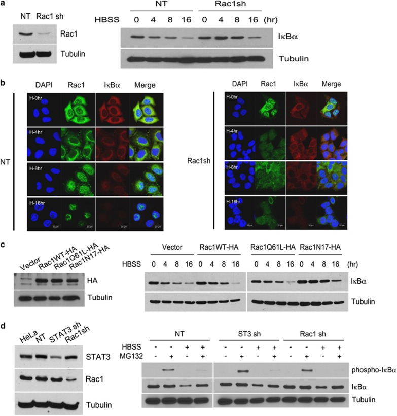 Degradation of IκB kinase by Rac1 in starved cancer cells is independent of IκBα serine phosphorylation by IKK. ( a ) HeLa cells expressing NT shRNA or Rac1 shRNA were western blotted with Rac1 Ab and tubulin Ab (left). HeLa cells expressing NT shRNA or Rac1 shRNA were incubated in HBSS for the indicated time periods and western blotted with IκBα Ab and tubulin Ab (right). ( b ) HeLa cells expressing NT or Rac1 shRNA incubated in HBSS for the indicated time periods were fluorescence-stained with anti-Rac1 Ab, anti-IκBα and DAPI. Arrow indicate p105 (upper) and p50 (lower), respectively. ( c ) HeLa cells expressing control vector, Rac1WT-HA, Rac1Q61L-HA or Rac1N17-HA were western blotted with HA Ab and tubulin Ab (left). HeLa cells expressing control vector, Rac1WT-HA, Rac1Q61L-HA or Rac1N17-HA were incubated in HBSS for the indicated time periods and western blotted with IκBα Ab and tubulin Ab (right). ( d ) HeLa cells expressing NT shRNA, STAT3 shRNA or Rac1 shRNA were western blotted with STAT3 Ab, Rac1 Ab and tubulin Ab (left). HeLa cells expressing NT shRNA, STAT3 shRNA or Rac1 shRNA were incubated in HBSS for 6 h with and without MG132 (25 μ M ), and western blotted to detect phospho-serine IκBα, IκBα or tubulin (right). Ab, antibody; DAPI, 4′,6-diamidino-2-phenylindole; HBSS, Hank's balanced salt solution; NT, non-target; short hairpin RNA; STAT3, signal transducer and activator of transcription 3.