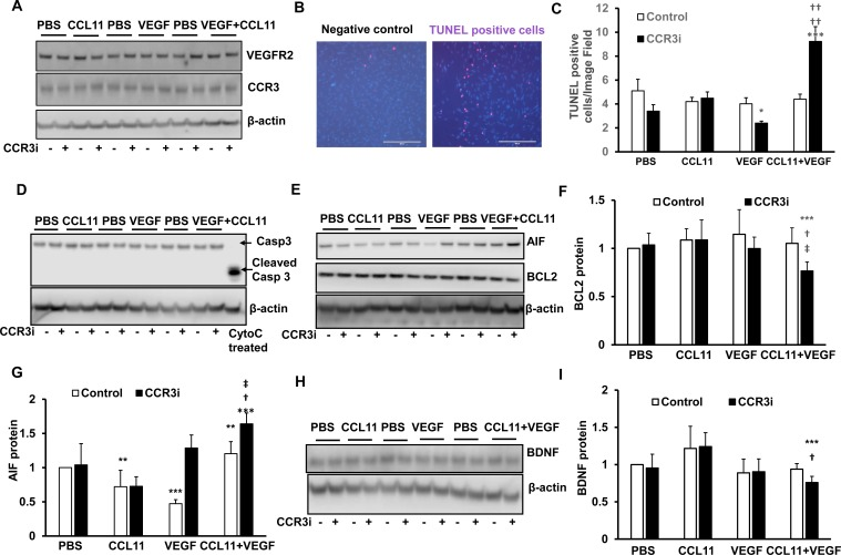 Inhibition of CCR3 promotes cell death events in cultured human Műller cells. In cultured human MIO-M1 cells treated with PBS, CCL11, VEGF, or CCL11 and VEGF with pretreatment with CCR3i or control (DMSO), (A) western blots of CCR3 and VEGFR2. (B) TUNEL staining. (C) Quantification of TUNEL+ cells. (D) Western blots of cleaved caspase-3 and total caspase-3. (E) Western blots and quanfication of (F) BCL2 and (G) of AIF. (H) Western blots and (I) quanfication of BDNF (*p
