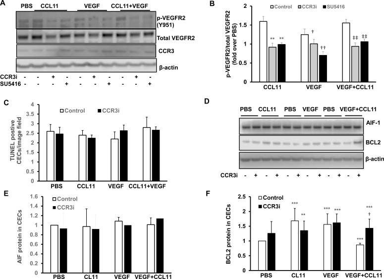Inhibition of CCR3 in cultured human CECS reduces VEGF signaling without inducing cell death. In cultured human CECs treated with PBS or CCL11, VEGF or CCL11 and VEGF with or without pretreatment with CCR3i or control, (A) western blots of phosphorylated VEGFR2 (p-VEGFR2) and CCR3 and (B) quanfication of p-VEGFR2 (pretreatment with SU5416 was used as a control for inhibition of VEGFR2 activation) (**p