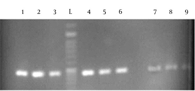 L: Ladder number (1, 2, 3), PCR product with 1 microliter of DNA template extracted with Qia Amp Mini kit; Number (4, 5, 6), PCR product with 2 microliters of DNA template extracted with Chelex method; Number (7, 8, 9), PCR product with 1 microliter of DNA template extracted with Chelex method.