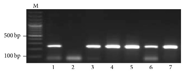A representative 1.5% agarose gel of PCR products for the detection of HBV in HCV positive patients. Lane M: DNA marker, lane 1: positive control (242 bp), lane 2: negative control, and lanes 3 to 7: patients positive for HBV DNA.