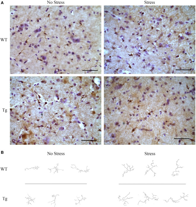 HIV-1 transgenic and wild-type rats were exposed to chronic adolescent stress or left non-stressed during adolescence . Brains were sectioned at 40 μm and stained for IBA-1 and visualized with diaminobenzidine. Representative images of the hippocampus for HIV-1 Tg, WT, stressed, and non-stressed rats are shown (A) . Images were adjusted for brightness and contrast. Scale bar = 50 μm. IBA-1-stained microglia were then converted to 8-bit, adjusted for brightness, and cleaned with a Gaussian filter. Images were converted to binary and skeletonized in ImageJ. Representative images of non-stressed WT, stressed WT, non-stressed Tg, and stressed Tg rats are shown (B) .