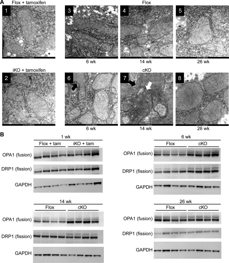 Morphology and biochemical characteristics of hepatocyte mitochondria from RNase H1 knockout mice. Liver tissue was harvested from control RNase H1 floxed mice (flox + tam) and inducible RNase H1 knockout mice (iKO + tam) 1 week post tamoxifen treatment and control RNase H1 floxed mice (flox) and constitutive RNase H1 knockout mice (cKO) at weeks 6, 14 and 26. ( A ) Transmission electron micrograph. The white arrow indicates mitochondrial fusion and the black arrow indicates mitochondrial branching. * indicates glycogen appearance. ( B ) Western blots of proteins involved in mitochondrial fusion (OPA1) and fission (DRP1). The house-keeping gene GAPDH was used as a loading control for the western analysis. Each lane shows the expression levels of these proteins in individual mice ( N = 4). Also see Supplementary Figure S1D.