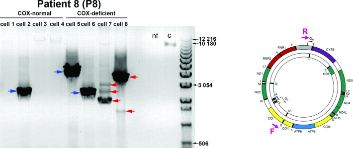 Long range PCR analysis of mtDNA from individual myofibres from a sIBM patient. A representative agarose gel image of 10-kb long range PCR analysis of DNA extracted from four individual COX-normal ('cell 1–4') and COX-deficient myofibres ('cell 5–8') from a sIBM patient ('P8') is presented. A positive control of DNA extracted from whole-blood of a healthy individual ('c') was used to ensure detection of full-length amplicons whereas a no-template ('nt') control sample served as a control for contamination. A 10-kb product was amplified with wild-type mtDNA ('c') whereas shorter products were formed with mtDNA molecules harbouring deletions ('cell1-4'). A single deletion species was found in 'cell 1' and 'cell 2' (blue arrows) whilst 'cell 3' and 'cell 4' contained two or three deletions of different sizes respectively (red arrows). The location of the forward ('F') and reverse ('R') primers used in the assay (F6358 and R001) is shown in a schematic representation of an mtDNA molecule on the right.