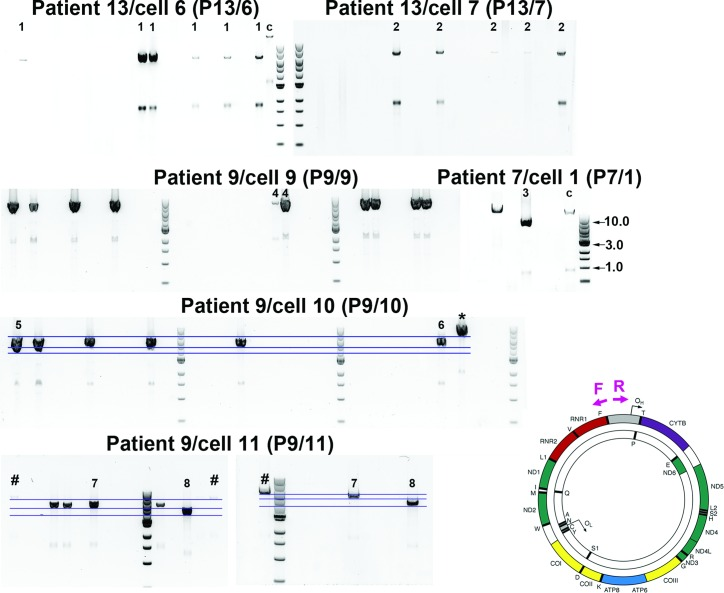 Analysis of individual molecules of mitochondrial genome using single molecule PCR amplification. Representative smPCR gel images from single cell lysates obtained from three sIBM patients ('P13', 'P9' and 'P7'), where each amplified product came from a single molecule of mtDNA. In order to ensure that each amplicon was indeed created from one template, the fraction of positives had to be equal or lower than 0.25 (no more than 1 out of 4 PCR reactions contained a product). Primers hybridizing with the D-Loop region were designed to amplify ∼16 kb of mtDNA and are marked as forward ('F') and reverse ('R') in a schematic of mtDNA molecule on right. One fragment was generated from samples: 'P13/6', 'P13/7', 'P9/9' and 'P7/1' signifying one type of mtDNA deletion (additional smaller amplicons, equidistant from the main amplicon in each lane, are a consequence of mispriming). Samples 'P9/10' and 'P9/11' both gave rise to three amplicons each indicating three different deletion species per cell (blue horizontal lines indicate different sizes of individual fragments). All 20 amplicons marked with numbers ('1–8') were sequenced using Sanger sequencing, whereas two products '7' and two products '8' were also verified using next generation deep sequencing. Amplicons '*' and '#' were detected by agarose gel electrophoresis but not sequenced.