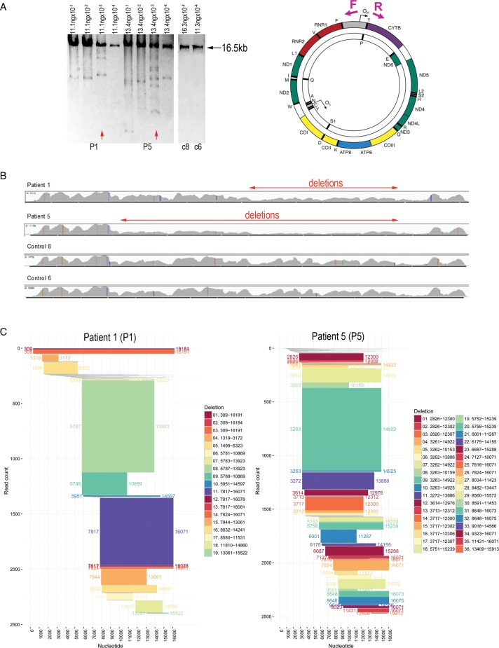 Detection of mtDNA deletions in homogenate DNA samples by next generation sequencing. ( A ) DNA extracted from ten 20-μm muscle cryosections from two sIBM patients (P1 and P5) and two controls (c6 and c8) was subjected to long range PCR. For the patients, four serial dilutions were used in four reactions to find the concentration that would result in the highest number of amplicons. Selected samples are depicted by red arrows. The schematic on the right shows position of PCR primers used (261F and 16291R). ( B ) Graphical representation of read depth for all sequenced samples. Both controls show almost identical peaks and troughs, whereas the patients differ from controls and one another. Low read depth, clearly visible in certain areas of the mitochondrial genome, indicates mtDNA deletions (depicted by red arrows). ( C ) Graphical representation of all deletions detected in the patients' mtDNA by analysis of chimeric sequencing fragments. Each horizontal bar shows the deleted portion of the mtDNA genome as represented by the chimeric reads that align to two distinct parts of the mtDNA reference sequence. The x axis shows the nucleotide position on the mitochondrial genome (0–16 569 bp). The y axis depicts cumulative read count, with individual reads ordered from top to bottom by 5' and then 3' breakpoints. All chimeric reads are depicted; those in grey have read counts below 5 and are unlikely to represent deletion species. All other multiple read deletions are colour coded for clarity, with breakpoints annotated on both the main figure and in the legend and the height of each bar representing the read count.