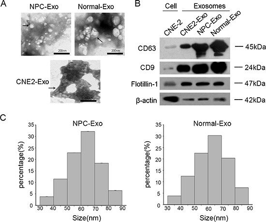 Characterization of exosomes ( A ) Representative electron microscopy image of exosomes. ( B ) Western blot analysis of CD63, CD9 and β-actin in exosomes and CNE-2 cells. <t>Flotillin-1</t> was used as a loading control. ( C ) The number of exosomes was counted in 10 fields under TEM (transmission electron microscope).
