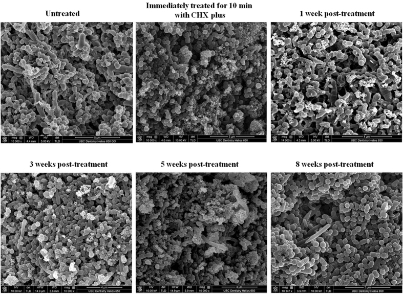 Scanning electron micrographs of a multispecies oral biofilm untreated and treated with CHX-Plus over time.
