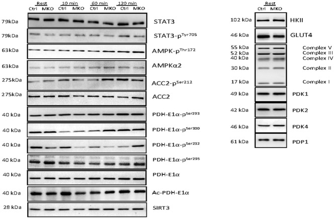 Representative blots of STAT3, STAT3 Tyr705 phosphorylation (phos), AMPK Thr 172 phos, AMPKα2, ACC2 Ser212 phos, ACC2, PDH Ser293 phos, PDH Ser300 phos, PDH Ser232 phos, PDH Ser295 phos, PDH protein, lysine acetylated pdh-E1α protein, sirtuin 3 (SIRT3), Hexokinase II (HKII), GLUT4, OXPHOS complexes I-V, PDK1, PDK2, PDK4 and PDP1 protein content.