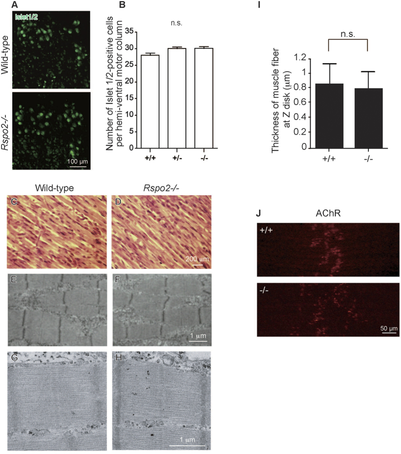 Lack of R-spondin 2 (Rspo2) in mice has minimal effects on spinal motor neuron (SMN) survival and muscle differentiation, but has a significant effect on acetylcholine receptor (AChR) clusters in the left diaphragm. ( A ) Immunostaining for islet1/2 expressed in the SMNs of the spinal cord (C3-C6) at embryonic day ( E ) 18.5. ( B ) The number of islet1/2-positive SMNs in wild-type (+/+), heterozygous Rspo2 -knockout (+/−), and homozygous Rspo2 -knockout (−/−) mice. Bars indicate the mean and standard error of mean (SE) ( n > 90). No statistically significant differences (n.s.) were observed with one-way ANOVA. ( C,D ) Hematoxylin and eosin staining of the tibialis anterior muscle of mice at E18.5. ( E–H ) Representative electron micrographs of the diaphragms at E18.5 at different magnifications. ( I ) Thickness of muscle fibers at the Z disk in the left diaphragms of wild-type (+/+) and Rspo2 -knockout (−/−) mice. Five to seven electron micrographs were analyzed in each mouse. ( J ) Surface views of the left diaphragms harvested from wild-type (+/+) and Rspo2 -knockout (−/−) mice at E18.5. AChR was stained with Alexa546-conjugated α-bungarotoxin (red). The widths of the AChR bands of wild-type and Rspo2 -kockout diaphragms were 143.34 ± 3.73 μm and 221.85 ± 6.52 μm, respectively ( p