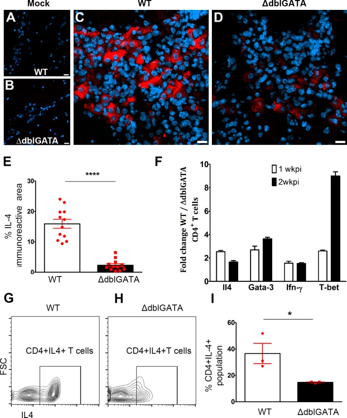 Eosinophil-deficient mice have reduced Th2 response during murine NCC. Immunofluorescent staining for IL-4 shows negative signals in mock-infected WT ( A ) and ΔdblGATA brains ( B ). However, IL-4 is upregulated after infection and abundant in inflammatory infiltrates of WT mice ( C ) and to a lesser extent in ΔdblGATA mice ( D, E ). Total RNA isolated from enriched brain T cells was subjected to reverse transcription and transcript levels of IL-4 and Gata3 assessed by qRT-PCR and results shown as fold change over values from ΔdblGATA mice ( F ) revealed an enrichment of both transcripts in WT T cells. CD4 T cells were isolated from infected brains and incubated with PMA/Ionomycin and Brefeldin A/Monensin followed by intracellular IL-4 staining ( G, H ). The proportion of CD4 + IL-4 + T cells ( I ) was increased in T cells isolated from infected WT mice.