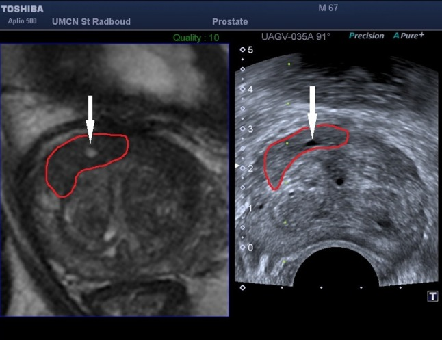Screenshot of the Toshiba <t>Aplio</t> 500 demonstrating the use of anatomical landmarks used for local reference augmentation. Reference landmarks are (iteratively) selected close to the target location. This example shows a cyst (indicated by the white arrow ) inside the lesion (segmented in red )