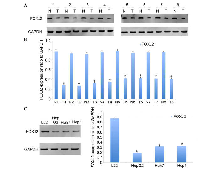 FOXJ2 was downregulated in human HCC tissues and HCC cell lines. (A) Western blot analysis was performed to detect the expression of FOXJ2 in 8 representative paired HCC tumor tissues (T) and adjacent non-tumor tissues (N). GAPDH was used as a loading control. (B) The band intensity of FOXJ2 and GAPDH was quantified and the FOXJ2 protein level was normalized to the GAPDH protein. The data are presented as the mean ± standard deviation of three independent experiments ( * P