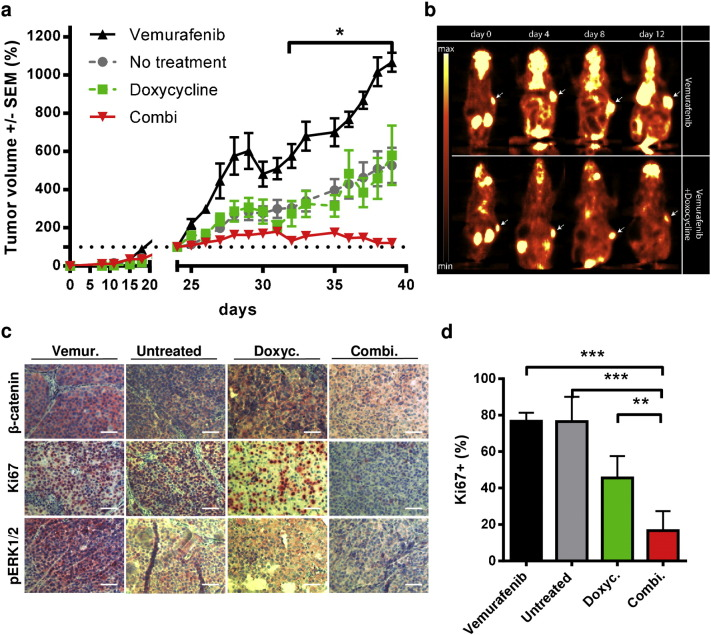 Knockdown of β-catenin synergizes with vemurafenib for the inhibition of tumor growth of BRAFi resistant melanomas. a) Xenograft experiment using Tet-inducible 451Lu-R cells for s.c. injection (1 × 10 6 cells) into SHO mice. After formation of 100 mm 3 tumor nodules upon daily i.p. injections with vemurafenib (25 mg/kg) the mice were randomized into four treatment groups: i) vemurafenib treatment (black), ii) untreated (grey), iii) shRNA induction by doxycycline (1 mg/ml) in the drinking water ad libitum and (green) iv) combination (red) (n = 5 per group). The tumor growth was daily monitored by caliper measurements and normalized to the size at day 0 of treatment. Multiple t tests were used to determine the data points of the combination group with p