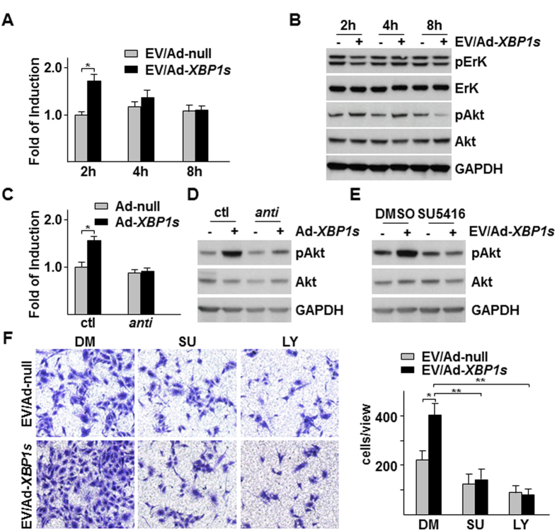 VEGF-PI3K/Akt pathway was responsible for Ad- XBP1s /HSMC-derived EVs-mediated EC migration. ( A,B ) Ad- XBP1s /HSMC-derived EVs increased VEGF-A mRNA and Akt phosphorylation in HUVECs. EVs were isolated from Ad- XBP1s /HSMC condition medium (CM), reconstituted in M199 medium supplemented with 5 μg/ml insulin and 5 μg/ml transferrin and applied to HUVECs for time indicated, followed by quantitative RT-PCR analysis of VEGF-A mRNA (A) or western blot analysis of ErK and Akt (S473) phosphorylation ( B ). ( C,D ) Anti-miR-150 abolished XBP1s /HSMC-derived EVs-mediated VEGF-A expression and Akt. EVs were isolated from control (ctl) or anti-miR-150 transfected with Ad- XBP1s -infected HSMCs CM, reconstituted and applied to HUVECs for 2 h, followed by VEGF-A mRNA ( C ) and Akt (S473) phosphorylation assays ( D ). ( E ) SU5416 ablated Ad- XBP1s /HSMC-derived EVs-induced Akt phosphorylation. HUVECs were treated with EVs isolated from Ad- XBP1s in the presence of 10 μM SU5416 for 2 h, followed by Akt phosphorylation assay. ( F ) SU5416 and LY294002 attenuated Ad- XBP1s /HSMC-derived EVs-induced HUVEC migration. Transwell migration assays were performed with EVs isolated from Ad- XBP1s -infected HSMC CM in M199 medium supplemented with insulin and transferrin in the presence of SU5416 (SU) or 10 10 μM LY294002 (LY) for 8 h. Left panel shows the representative images of migrated cells while right panel shows average migrated cells per 10x view. Ad-null and DMSO (DM) were included as control. Data presented are representative images or mean of three independent experiments. (mean ± SEM, * P