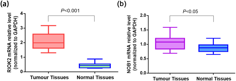 RIOK2 and <t>NOB1</t> <t>mRNA</t> expression levels in NSCLC tissues compared with normal tissues. ( a ) The mean RIOK2 mRNA expression level was higher in the tumour tissues (2.16 ± 0.57) than in the corresponding paired adjacent normal lung tissues (0.46 ± 0.21) ( P