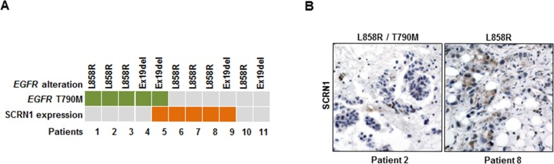 Increased SCRN1 levels were detected in a subset of patient specimens from EGFR-TKIs resistant lung adenocarcinoma patients ( A ) Schematic summary of 11 primary tumor specimens obtained from patients with acquired EGFR-TKI resistant lung adenocarcinoma for the status on T790M mutation in EGFR and SCRN1 protein expression determined by immunohistochemistry. ( B ) Immunohistochemical staining for SCRN1. Representative images from specimens (patient 2 and patient 8) that show negative and positive SCRN1 immunohistochemical staining, respectively.