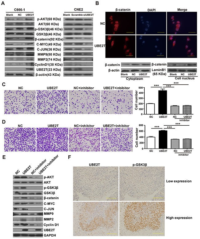 UBE2T promotes NPC cell proliferation and metastasis probably by activating the AKT/GSK3β/β-catenin pathway A. Western blot detected the effects of UBE2T on β-catenin, its downstream proliferation/metastasis-related target proteins (Cyclin D1, C-MYC, C-JUN, MMP2, and MMP9), and its upstream pathway proteins (p-AKT, p-GSK3β). B. Immunofluorescence determined the effects of UBE2T overexpression on nuclear translocation of β-catenin. Scales indicate 40 μm. (up; ×1000 field), and separate nuclear and cytoplasmic protein western blot verified the effects of UBE2T on nuclear translocation of β-catenin (down). C. and D. Transwell and matrix-coated transwell analysis detected the effects of AKT inhibitor (MK-2206 2HCl) on the pro-migration and invasion abilities. Representative images of the transwell (C) and matrix-coated transwell (D) assay from indicated groups at 6h (migration) and 24h (invasion). The bar chart represents mean ±SEM number of migration and invasive cells from 5 random 20X objective fields (analysis of variance [ANOVA] of factorial design, *** P