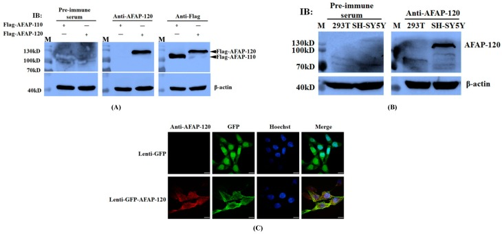 Recognization of anti-AFAP-120 antibody to denatured human AFAP-120. ( A ) HEK 293T cells were transfected with plasmids pCMV-Flag-human AFAP-120 and pCMV-Flag-human AFAP-110 for 48 h. The extracted cell proteins were immunoblotted with antibodies against AFAP-120 (anti-AFAP-120) or Flag tag (anti-Flag) respectively. Rabbit pre-immune serum was used as a negative control and β-actin as the internal control. Black solid arrows indicate the corresponding AFAP protein; ( B ) HEK293T and SH-SY5Y cells were lysed and 25 μg of whole cell protein lysate was subjected to <t>immunoblotting</t> assay with anti-AFAP-120. Pre-immune serum was used as a negative control and β-actin as the internal control; ( C ) COS-7 cells were infected with recombinant lentiviruses expressing GFP (lenti-GFP) or GFP-human AFAP-120 (lenti-GFP-AFAP-120) for 48 h, and immunofluorescence assay was performed using the anti-AFAP-120 antibody. The cells were counterstained with Hoechst33258 (Hoechst). The merged images (Merge) are overlays of the first three panels. Scale bars equal 30 µm.