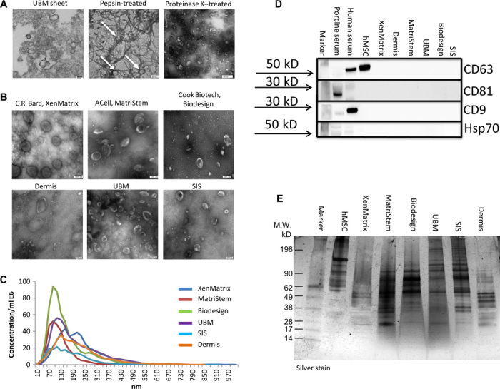 Identification of ECM-embedded MBVs. ( A ) TEM imaging of MBVs identified in a UBM sheet stained positive with osmium (left panel), pepsin-treated UBM (middle panel), or proteinase K–treated UBM (right panel). ( B ) TEM imaging of MBVs identified in proteinase K–treated ECM from three commercial and three laboratory-produced scaffolds. Scale bars, 100 nm. ( C ) Validation of MBV size was measured with NanoSight. ( D ) Western blot analysis was performed on four exosomal surface markers: CD63, CD81, CD9, and Hsp70. Expression levels were not detectable as compared to porcine serum, human serum, and human bone marrow–derived mesenchymal stem cell controls. ( E ) MBV protein cargo signature was different between MBVs and hMSCs as evaluated using SDS-PAGE and silver stain imaging.