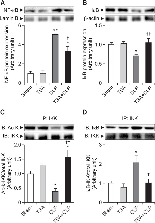 Effect of TSA on NF-κB signaling pathway in septic liver. Mice were intraperitoneally administered vehicle or 2 mg/kg TSA 30 min before CLP. The liver tissues were collected 6-h after CLP and then nuclear NF-κB (A) and cytosolic <t>IκB</t> (B) protein expression were determined. Liver lysates were immunoprecipitated with <t>anti-IKK</t> antibody and precipitated proteins were immunoblotted using anti-Ac-K (C) and anti-IκB (D) antibodies. The results are presented as mean ± SEM (n=6–8 per group) * p