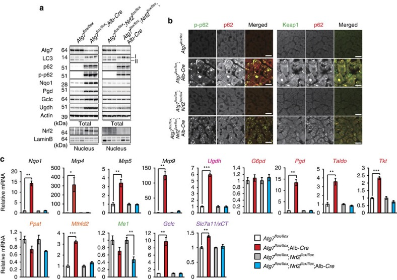 Persistent activation of Nrf2 in autophagy-deficient mouse livers. ( a ) Immunoblot analysis. Liver homogenates and nuclear fractions of female Atg7 f/f , Atg7 f/f ;Alb- Cre , Atg7 f/f ; Nrf2 f/f and Atg7 f/f ; Nrf2 f/f ;Alb- Cre mice aged at 5 weeks were prepared, and were subjected to immunoblotting with the indicated antibodies. ( b ) Immunofluorescence analysis. Liver sections described in a were double-immunostained with a combination of anti-phosphorylated p62 (green) and anti-p62 (red) antibodies, or of anti-Keap1 (green) and anti-p62 (red) antibodies. Scale bars, 20 μm. ( c ) Nrf2-dependent gene expressions in autophagy-deficient livers. Total RNAs were prepared from livers of female Atg7 f/f (n=4), Atg7 f/f ;Alb- Cre (n=4), Atg7 f/f ; Nrf2 f/f ( n =4) and Atg7 f/f ; Nrf2 f/f ;Alb- Cre mice ( n =4) aged at 5 weeks. Values were normalized to the amount of mRNA in the livers of Atg7 f/f or Atg7 f/f ; Nrf2 f/f mice. The experiments were performed three times. Data are means±s.e. * P
