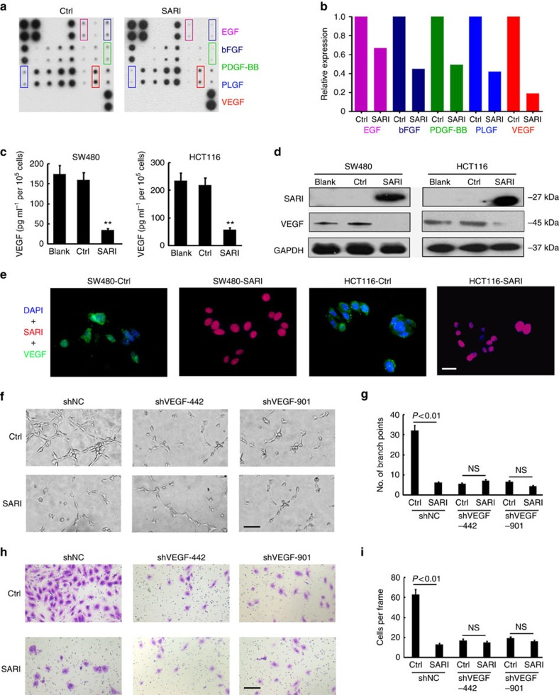 Reduction of VEGF by SARI. ( a ) Human angiogenesis array analysis of the conditional medium from SW480-controland SW480-SARI cells. ( b ) Summary of the relative signal intensity of indicated cytokines. ( c ) VEGF exacted from SW480 and HCT116 cells was quantified by ELISA ( n =3; ** P