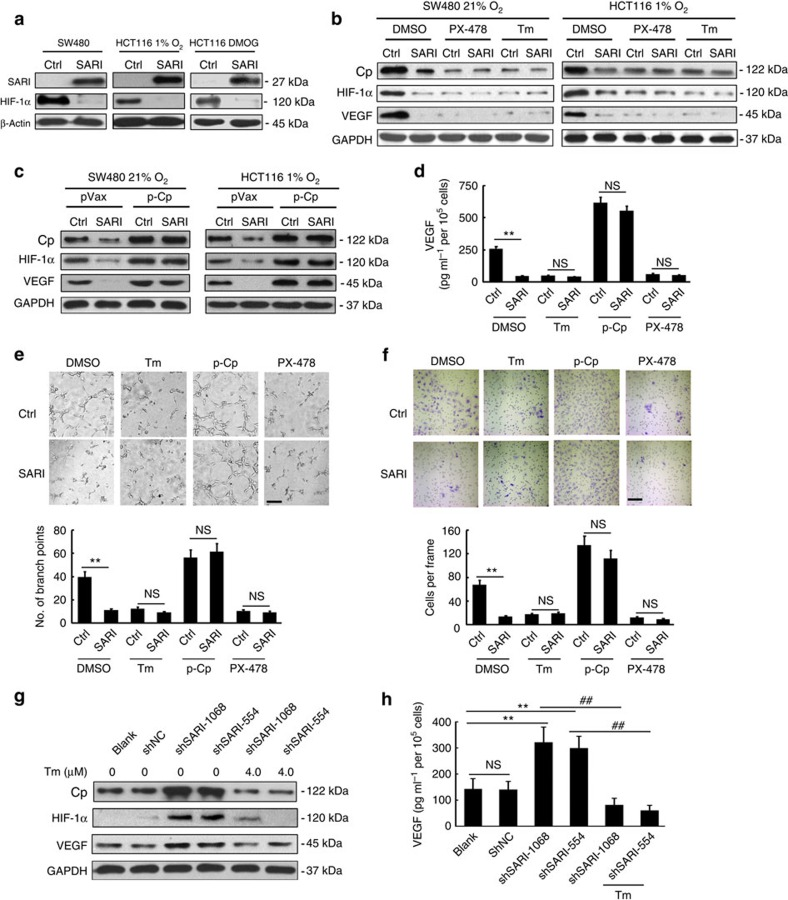 SARI inhibits angiogenesis through inhibiting Cp expression and the activity of the HIF-1α/VEGF axis. ( a ) Immunoblots of SARI and HIF-1α expression in SW480 and HCT116 cells after stable expression of SARI. HCT116-control and HCT116-SARI cells were incubated under 1% O 2 for 48 h or treated with DMOG for 24 h. β-Actin was used as a loading control. ( b ) Immunoblots of Cp, HIF-1α and VEGF expression in control and SARI cells with or without PX-478 (45 μM) or Tm (4.0 μM) treatment under normoxia and hypoxia. GAPDH was used as the loading control. ( c ) Immunoblots of Cp, HIF-1α and VEGF expression in control and SARI cells after transfection with or without p-Cp plasmid under normoxia and hypoxia. GAPDH was used as the loading control. ( d ) Expression of VEGF exacted by SW480-control and SW480-SARI cells with or without Tm (4.0 μM) and PX-478 (45 μM) treatment, after transfection with or without Cp expression plasmid ( n =3; ** P