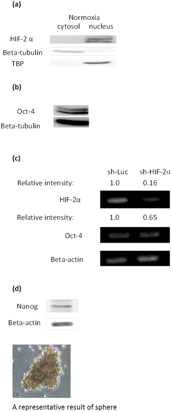 Expression of pluripotency related markers and a sphere culture of BEAS-2B under normoxia. ( a ) HIF-2α expression was detected in the nucleus of BEAS-2B under normoxia by western blotting. Beta tubulin and TATA binding protein (TBP) were used as protein markers for the cytosol and nucleus fraction, respectively. ( b ) Western blotting for Oct-4. ( c ) For knockdown of HIF-2α, BEAS-2B cells were transfected with shRNA targeting HIF-2α and sh-Luc was used as control. ( d ) Western blotting of Nanog and a culture of BEAS-2B containing floating spheres. Representative result from two or three experiments was presented.
