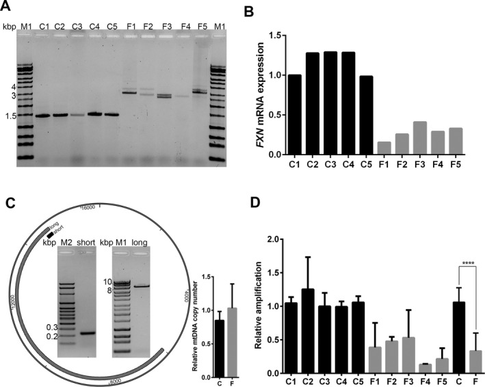 Increased mtDNA damage in FRDA fibroblasts. (A) PCR analysis of GAA repeat length in FRDA and control fibroblasts; M1 = HyperLadder Plus 1 kbp ladder, C1–C5 = controls, F1–F5 = FRDA. (B) qRT‐PCR analysis of FXN mRNA expression in fibroblast lines used in this study; C1–C5 shown in black, F1–F5 shown in gray. FXN expression was normalized to GAPDH mRNA level. (C) Left panel: Representative agarose gel electrophoresis and amplicons for mtDNA damage qPCR products; M1 = HyperLadder ™ 1 kb Plus ladder (catalog # BIO‐33068, Bioline, Taunton, MA); M2 = HyperLadder ™ 100 bp Plus ladder (catalog # BIO‐33071, Bioline); long = long PCR product, ~8.8 kbp; short = short PCR product, 222 bp. Long amplicon shown in gray, short amplicon shown in black. Right panel: qPCR analysis of mtDNA copy number in control (C) and FRDA (F) fibroblasts. Results shown are from two independent experiments with five biological replicates for each group. (D) mtDNA damage qPCR analyses of short and long fragments were performed for control and FRDA fibroblasts; results from at least three independent experiments are shown. Controls (C1–C5) are depicted in black and FRDA (F1–F5) are depicted in gray. Cumulative analysis of the data for entire C and F cohort is shown; **** indicates P