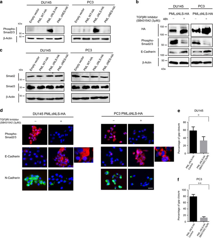 Cytoplasmic PML induces SMAD2/3 phosphorylation, EMT and cell invasion in vitro . ( a ) Immunoblotting of whole-cell extracts from DU145 and PC3 cells expressing PML mutant constructs using antibodies against phosphorylated forms of SMAD2/3 and β-actin (loading control). ( b ) Immunoblotting analysis of whole-cell extracts from DU145 and PC3 cells expressing the PML ΔNLS construct, treated with DMSO (control) or TGFβ-RI inhibitor (3 μ M for 48 h) using antibodies against HA, phosphorylated forms of SMAD2/3, E-Cadherin and β-actin (loading control). ( c ) Immunoblotting of whole-cell extracts from DU145 and PC3 cells expressing PML mutant constructs using antibodies against total SMAD2, SMAD3 and β-actin (loading control). ( d ) Immunofluorescence analysis of DU145 and PC3 cells expressing the PML ΔNLS construct, treated with DMSO (control) or TGFβ-RI inhibitor (3 μM for 48 h) using antibodies against phosphorylated forms of SMAD2/3, E-Cadherin and N-Cadherin. Scale bar=20 μm. ( e , f ) Wound healing assay (Scratch assay) using DU145 and PC3 cells expressing the PML ΔNLS construct, treated with DMSO (control) or TGFβ-RI inhibitor (3 μM for 48h) and the data relating to the percentages of gap closure at time points 0 and 24 h following scratching. Two-tailed paired test: * P =0.0451 and ** P =0.0088.