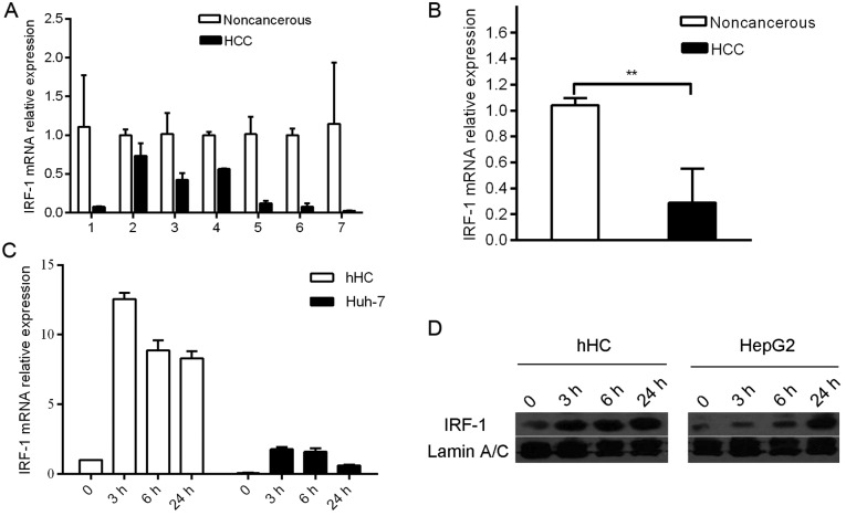 Expression of interferon regulatory factor-1 (IRF-1) is suppressed in hepatocellular carcinoma (HCC). (A) IRF-1 mRNA expression in 7 cases of HCC was decreased compared with the expression level in adjacent non-cancerous background liver samples. The IRF-1 mRNA level was quantified by qPCR. (B) IRF-1 mRNA levels were significantly lower in the HCC compared to the non-cancerous liver samples ( ** p