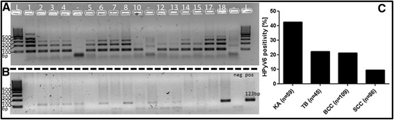 2 % agarose gel showing the specimen control size (SCS) ladder HPyV6 DNA-PCR and SCS ladder for keratoacanthoma (KA), results HPyV6 DNA-PCR: a reveals adequate DNA quality of KA in order to proceed with HPyV6 testing. b HPyV6 DNA PCR results of selected KA, showing amplification of the 123 bp fragment of the VP1 gene (123 bp) while using the primers according to Schowalter et al. [ 12 ] with the 123 pb positive controle. c Summary of the HPyV6-DNA PCR results on (KA), trichoblastoma (TB), basal cell carcinoma (BCC) and squamous cell carcinoma (SCC)